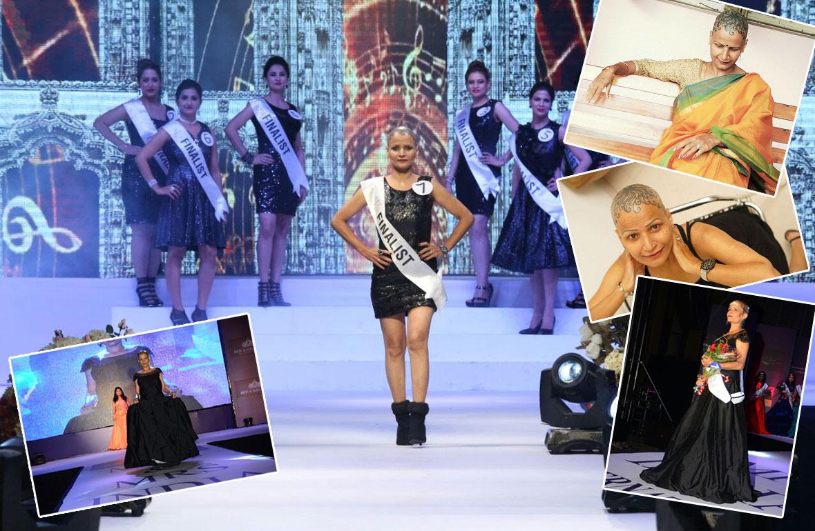 Ketki Jani a courageous alopecia survivor becomes a beauty pageant
